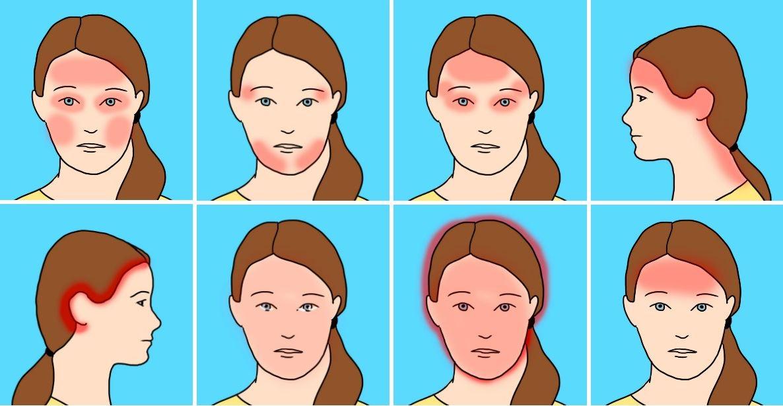 Hvordan blir du kvitt hodepine